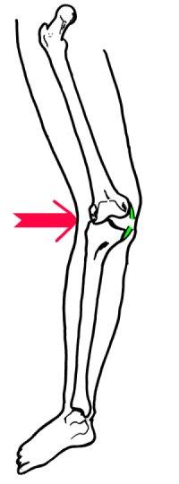 ligament interne genou symptome