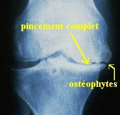 Usure complete du cartilage