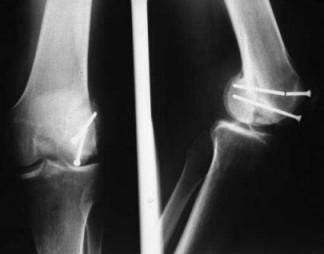 Les Fractures du genou